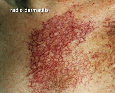 Radio Dermatitis Breast Cancer Moose And Doc
