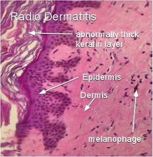 Radio Dermatitis Breast Cancer Moose And Doc