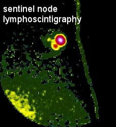 lymphoscintigraphy scan for lymph nodes  moose and doc