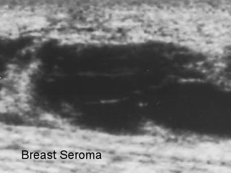 seroma ultrasound post breast cancer surgery