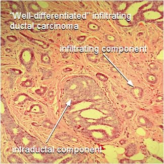 well differentiated infiltrating ductal carcinoma