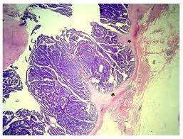 intraductalis papilloma radsokkal 4