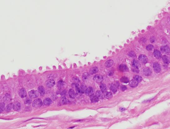 intraductalis papilloma radsokkal 4)
