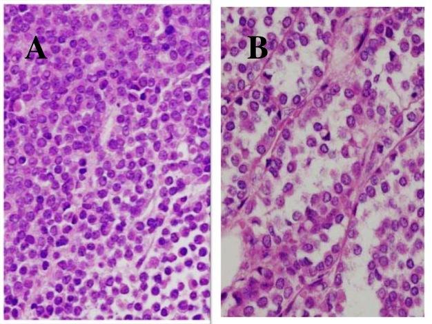 Breast cancer lobular pleomorphic variant