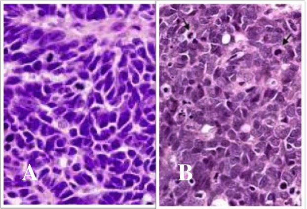 in bone and Adema carcinoma breast