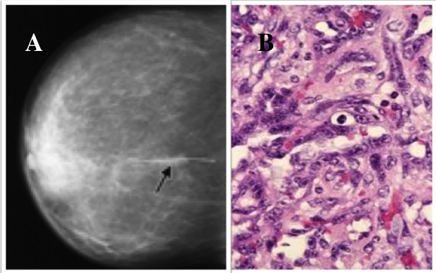 Breast cancer extremely rare type